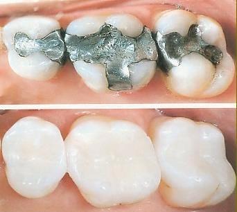 Dental filling2